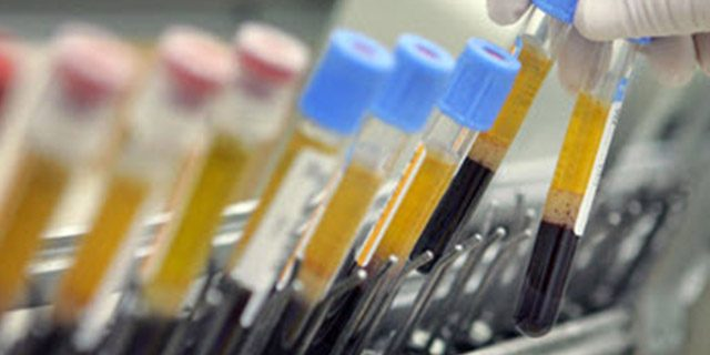 Immunotherapy' the new cancer treatment buzzword - The Caring Cancer
